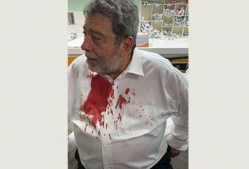 The attack on Dr Ralph E. Gonsalves which has now been classified as an attempted assassination with arrests made, happened on August 5, 2021, during a protest concerning amendments to the island's Public Health Act.